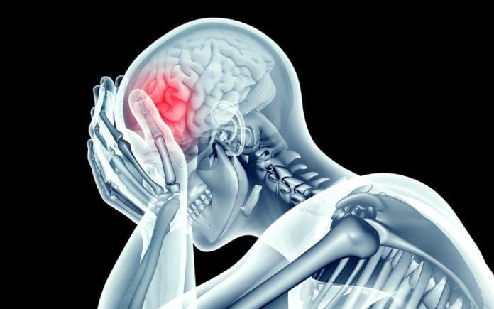 brain, blood vessels, microbleeds, head injury, trauma, MRI scans