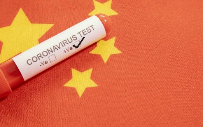 COVID-19, coronavirus, India, Coronavirus tests, DGCI